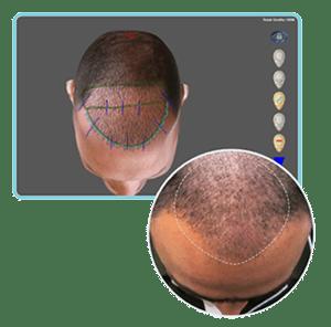 Hair Trasplant SIMONE TRICHOLOGY