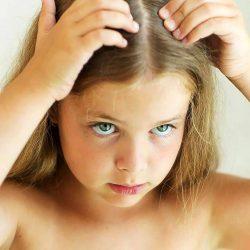 Hair Loss in Children - Caída de cabello en niños